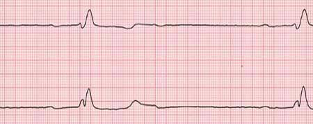 Bradycardie, c'est quoi? Causes, symptômes et traitement..